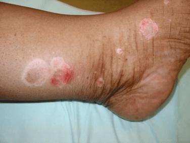 Psoriasis plaques