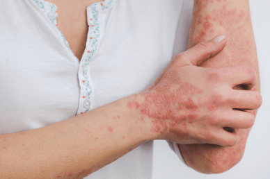 Psoriasis on the arms and wrist