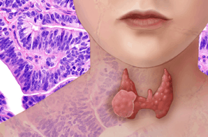 The thyroid is located at the base of the neck