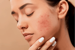 Acne scarring