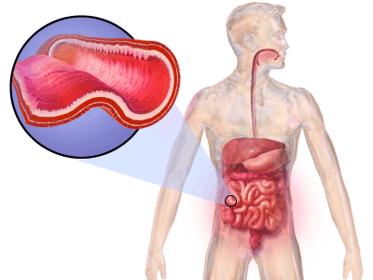 Crohn's disease in the digestive tract