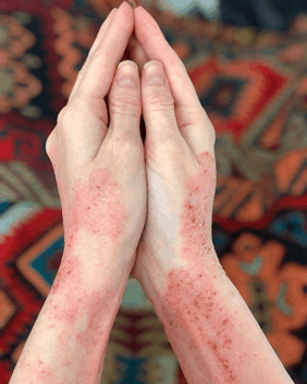 Eczema on the arms, wrists, and hands