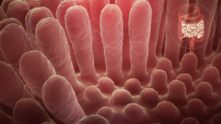 Inflammation caused by celiac disease
