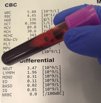 A complete blood count and differential