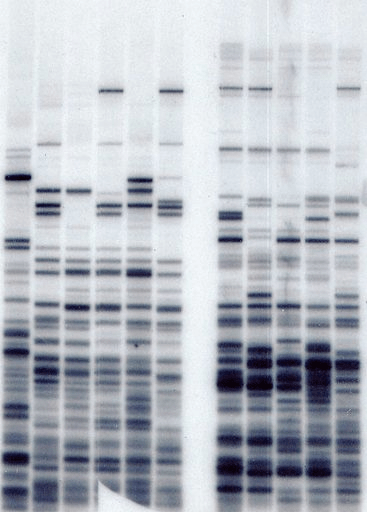 An early DNA fingerprinting experiment