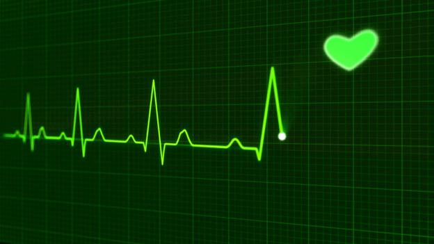 A sample of an EKG