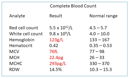 Example of a complete blood cell count