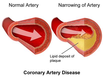 Plaque buildup in heart disease