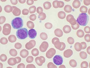Leukemia cells under a microscope.