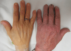Swelling of the hands