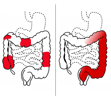 Inflamed areas in Crohn's disease and ulcerative colitis