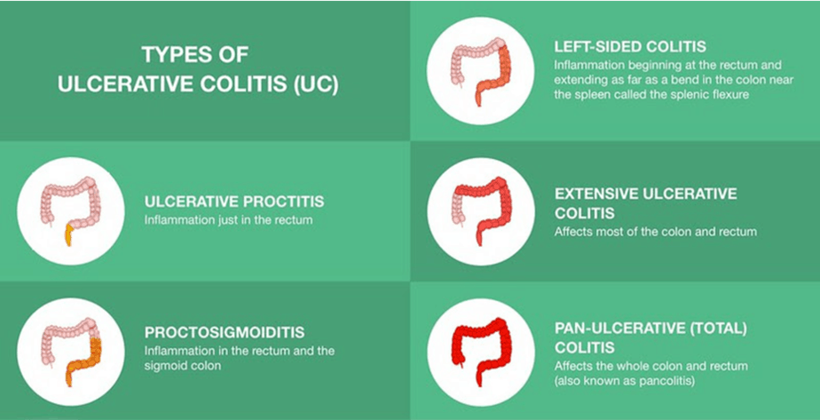 Types of ulcerative colitis