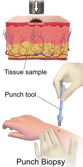 A punch biopsy diagram